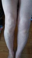 20210210_左膝の腫れ